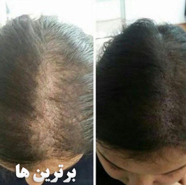 میکروپیگمنتیشن برای موی سر