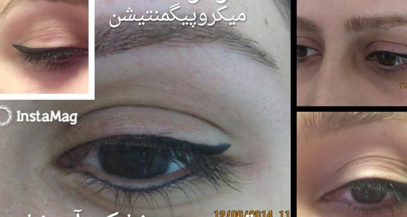میکروپیگمنتیشن چشم،ابرو و خط لب در تهران